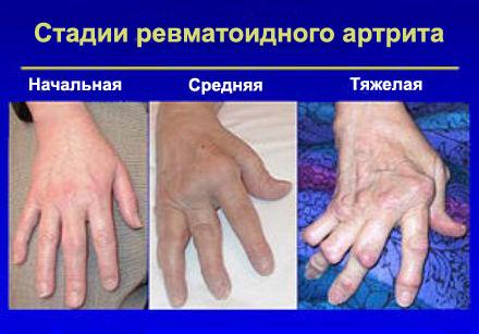 Purgery kanga regenereerimismeetodid kui ravida valu polvedes