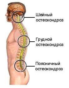 Valu kate kate liigestes osteokondroosi ajal