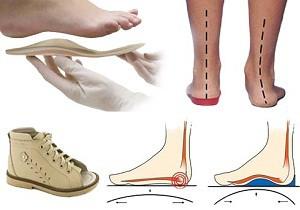 Valu jalgade jalamil Nao liigesevalu kui ravis