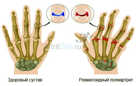 Esimese ola liigese artriidi artriit