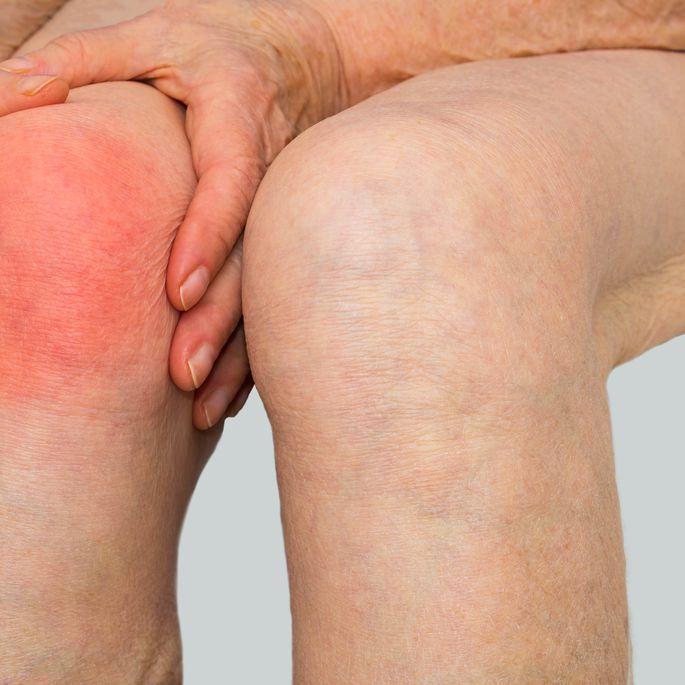 Neeralgia ola uhise Kuidas eemaldada valu Ola sailitamise sundroomi ravi