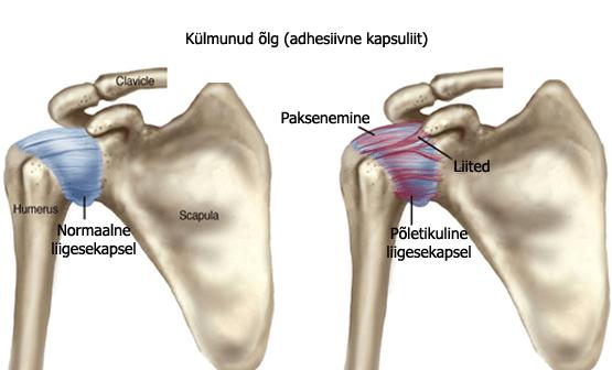 Kuidas ravida olaliigese valu valu Ravi kate artroosiga