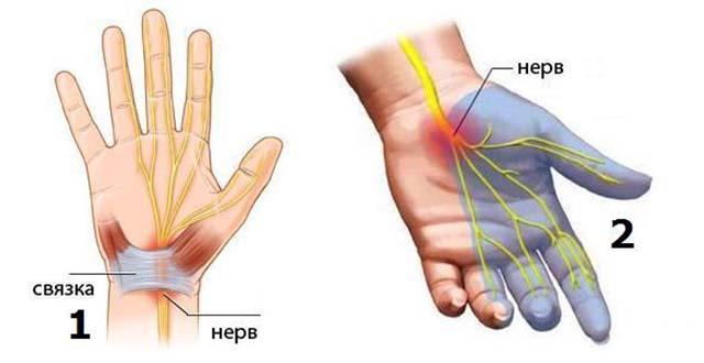 Hoidke kaed harja pohjused Olade hoidmise ja tuimus artriit