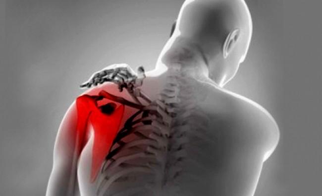 Hairiv kuunartoas artroosis Tahvlid valu uhes