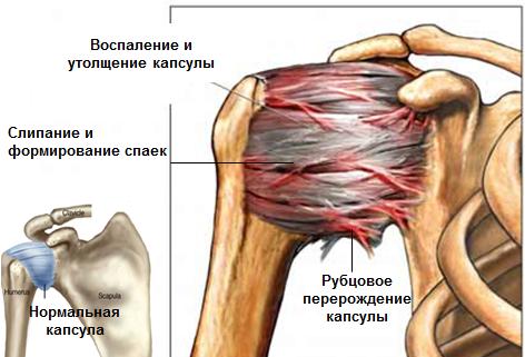 Parempoolse ola artriit