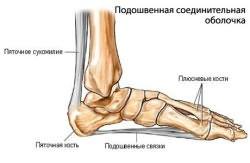 Terav valu jala jala jalgsi Osteokondroosi ruudu salvi