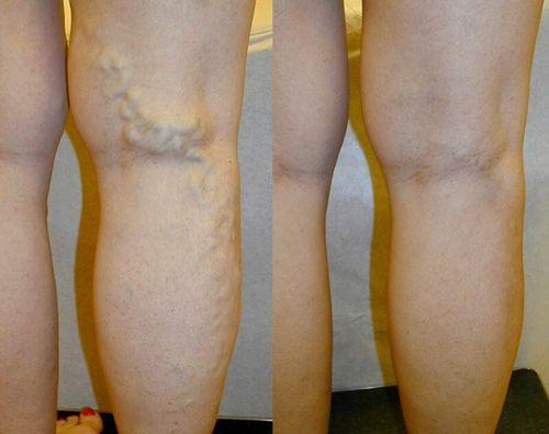 Jalutuskaigu valu pohjustel Artrosi fusioterapeutilise ravi