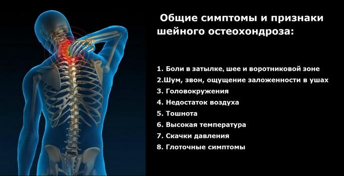 Osteokondroos olaliigese 4 kraadi