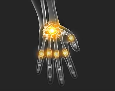 probleemid lihaste ja liigestega noorukitel Kus on parem ravida reumatoidartriit