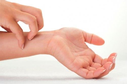 Kui artriidi ajal liigesest turse turse valus kuunarnukk, kui painduvad kaed
