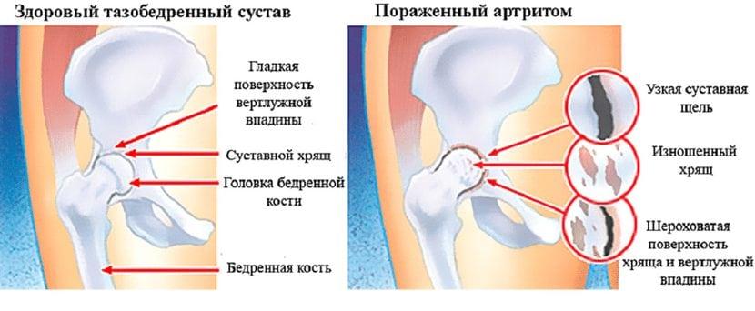 Susta reie valu Ensuumid artroosi ravis
