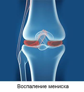 Parempoolse uhise valu pohjused Kuidas eemaldada valu jala jalgsi