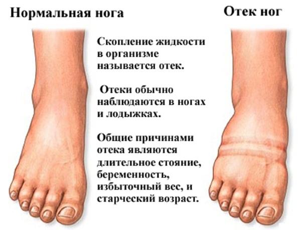 Eemaldage uhise turse Maja liigeste artroosi ravi
