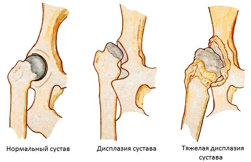 Nalga liigeste ulevaatuste artroosis Esoteerilised polved haiget