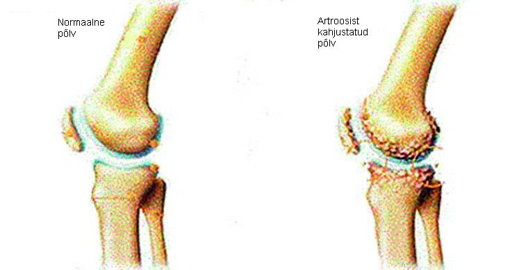 Poletik Kelbow liigese diabeet Artriit Folk ravi artriit sormede