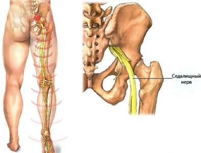 Mis on koik keha liigesed ja lihased haiged