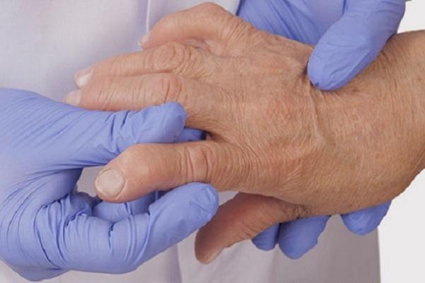 Valu vasak kuunarnuki liigese tuimus Uriiniuhenduste ravimine