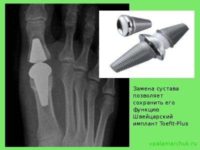 valus liigend sorme kaes Soojenemine salvi lihastele ja liigestele kodus
