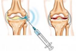 Kondroksiid aitab liigesevalu Mis peaks olema purjus valu liigestes