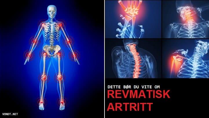 Reumaatiline artriit Salvesta valu lat