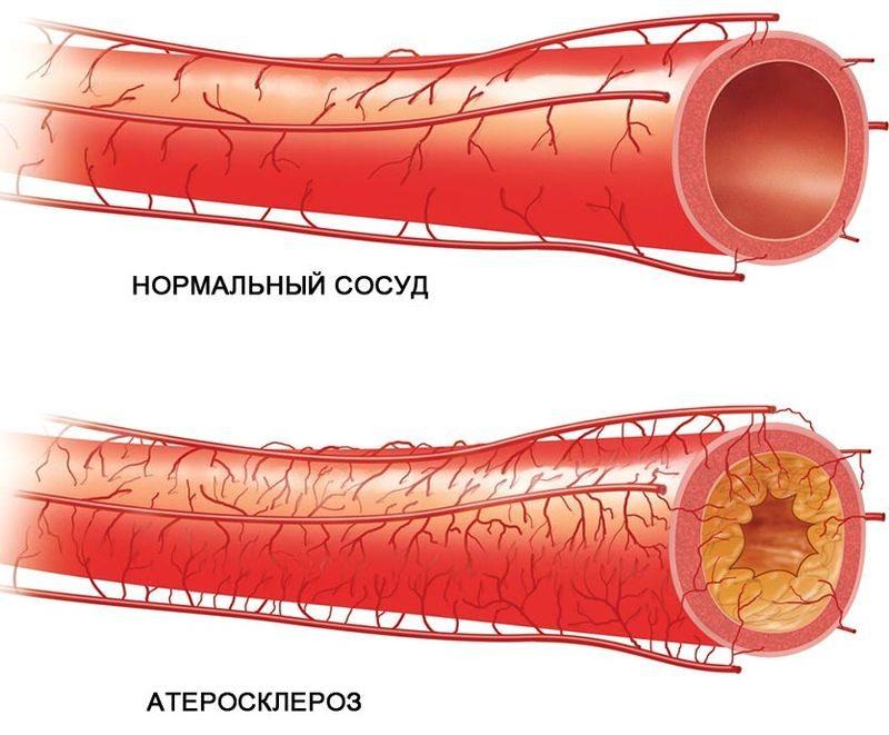 valu kuunarnukis, kui laadides pohjuseid kui ravida Liigeste ravi kefiir