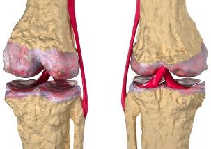 Artriidi margid kaeparast
