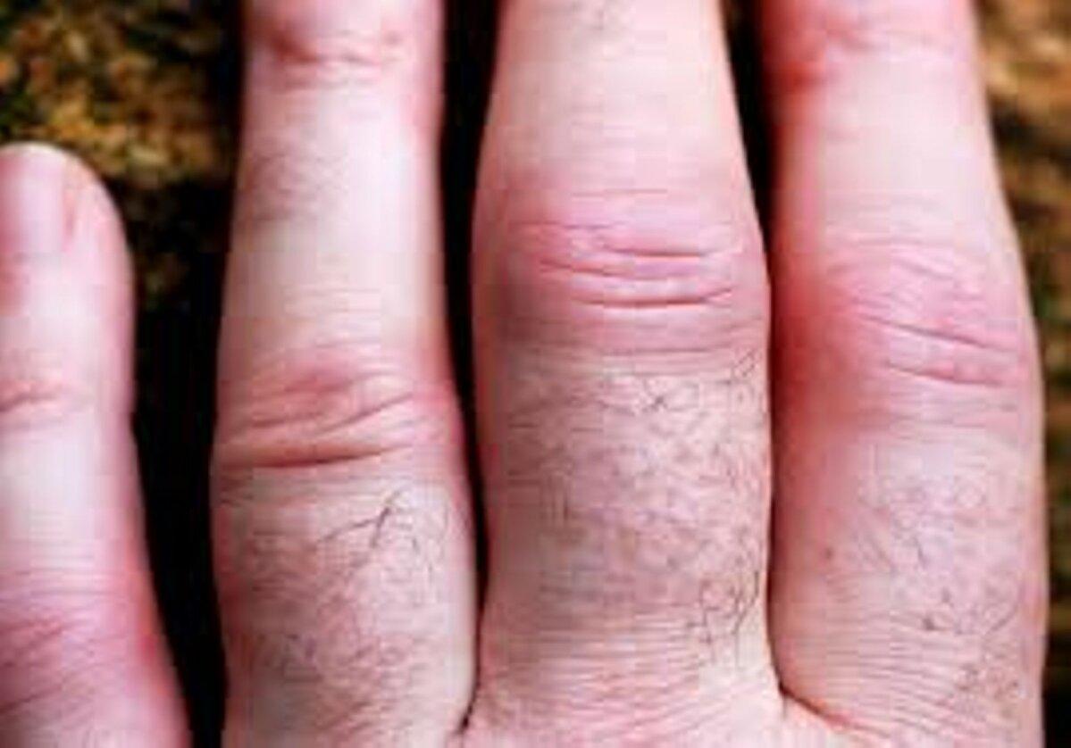 Hurt sormede ja kate liigestele