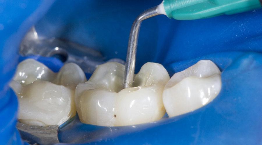 toodeldud hamba valutab