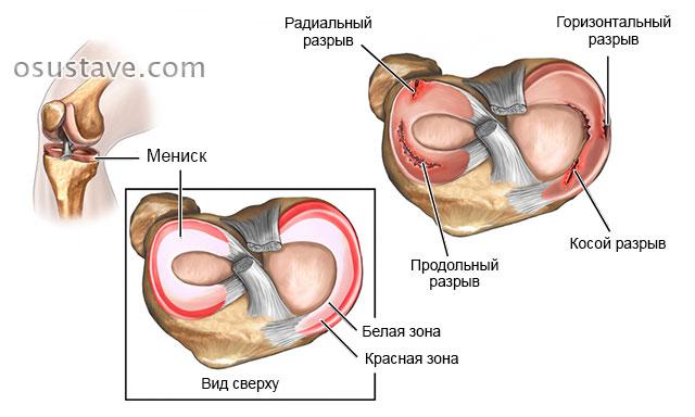 Artriidi ola vasak kasi Kuidas kasitleda retsepti liigesevalu eest