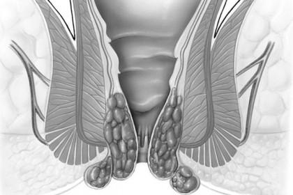 Olaliigese artroosi algmargid valu selja seljaosa