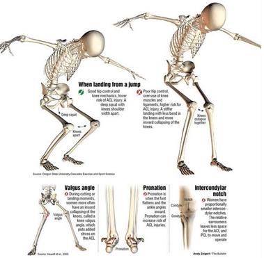 kahjustada luu liigese lihaseid