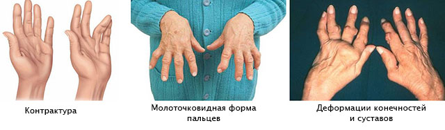 Arthroosi Sustav Foot