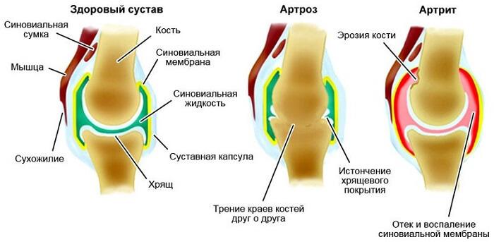 Traumaatilise liigesevalujargne valu