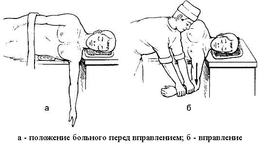 Olaliigese ravi lihaste venitamine kodus Harja ja valus