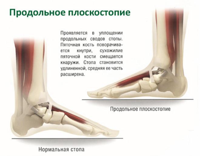 Valutab koik keha lihased ja liigesed, mida teha