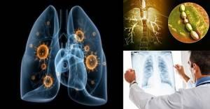 Hingamine valus diagnoosid Artroosi ravi varases staadiumis