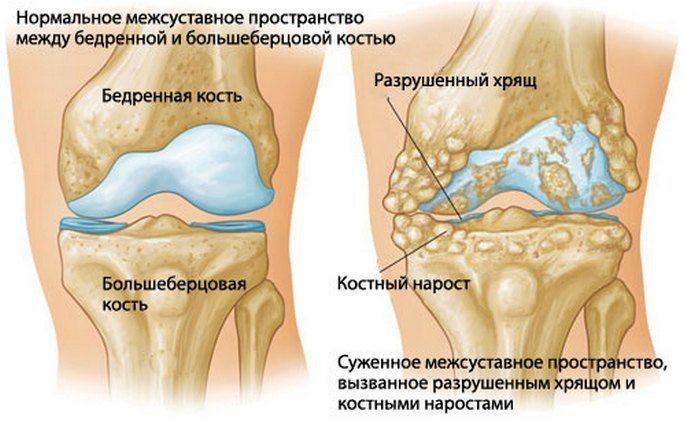 Kus on artriit ja artroos
