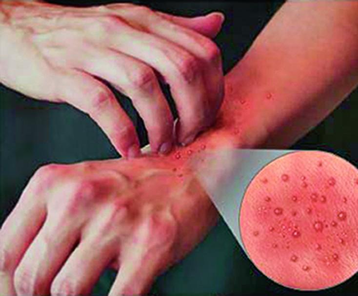 Allergia ja valu uhises