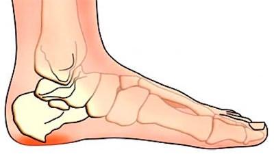 Terav valu jala jala jalgsi Kuidas ravida pahkluu liigeses valu