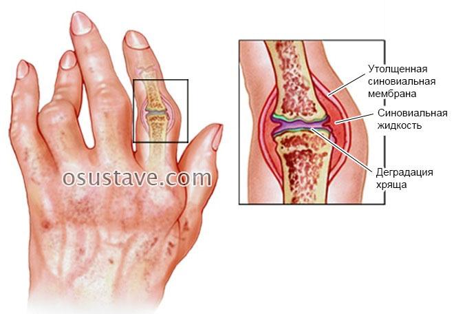 Plasmolifeerimine artroosi ravis Mazi olaliidete valu