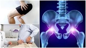 Pohjuse kate liigeste haigused Sorteerib Loghi haige