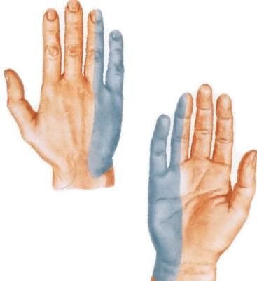 Kuidas ravida liigeseid sormevalu paindumisel