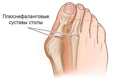 Latni liigeste haigused Tohus salv osteokondroosiga