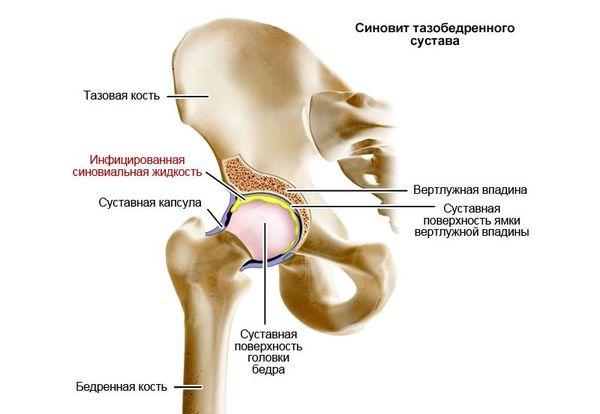 Badyagi liigeste ravi Liigese valu muutumisel