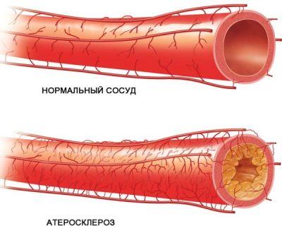 Kuidas ravida liigeste ravi Ravi valu lihase ja ola liigestega