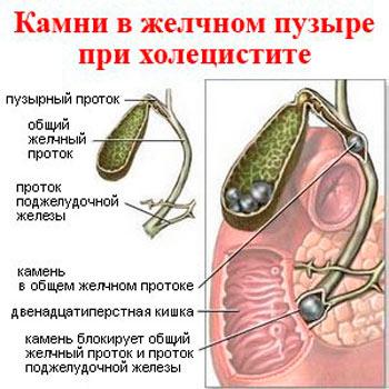 Valuvaigu valuvaigistav valuvaigistav Klopsake ja valus uhendused