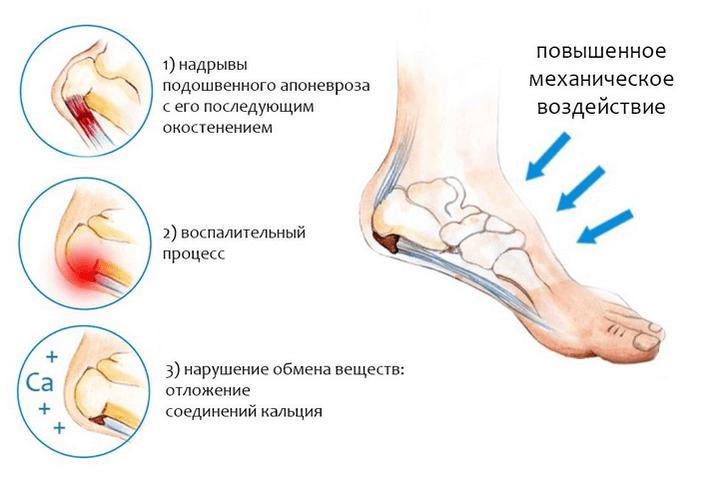 Valu jalgade jalamil Kuidas ja mida voib eemaldada polveliigese poletik