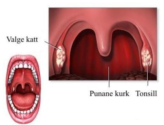 Parast tonsilliidi valus liigeseid poidla valu pohjused