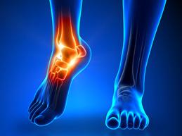 Valu artroosiga kui liigeste turse ravimine
