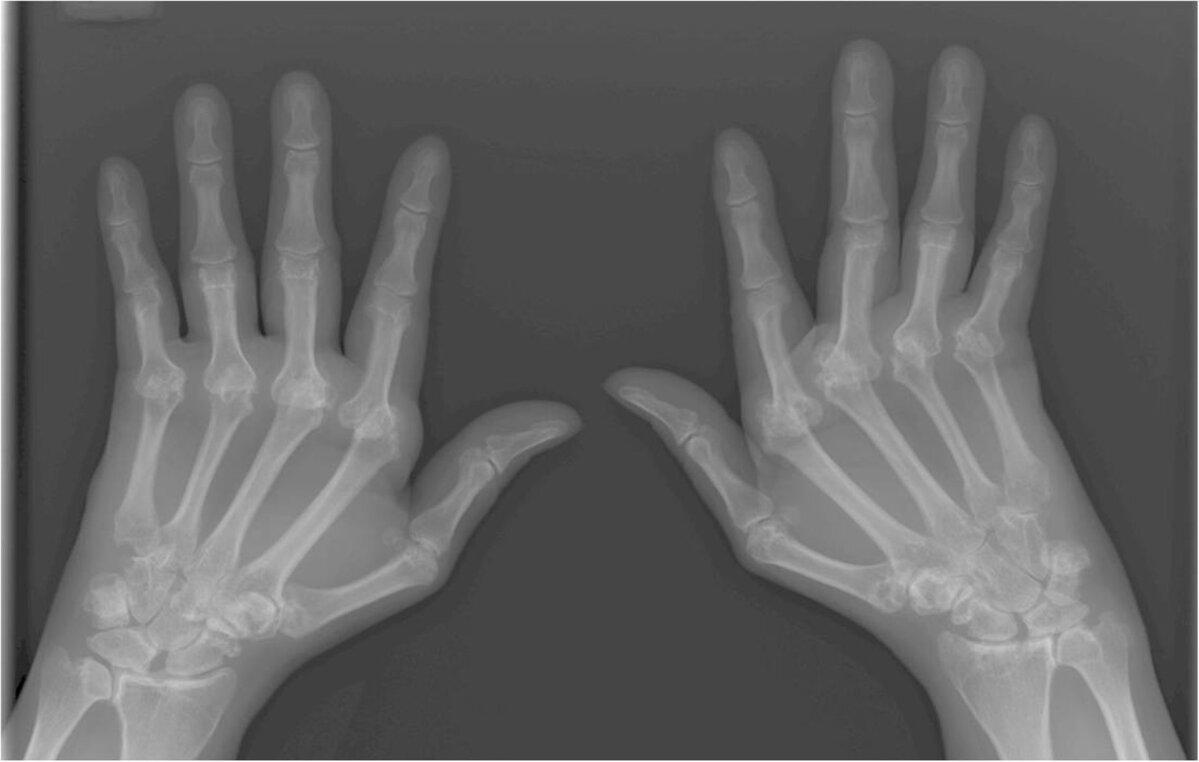 Hoidke parempoolse sormeotste liigeseid